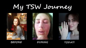 My Topical Steroid Withdrawal Journey